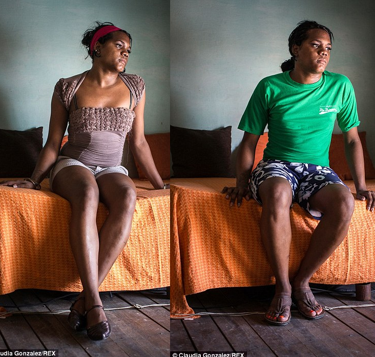 After and Before Transgender Woman