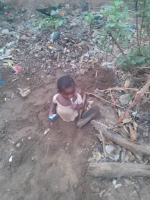 PHOTO: Family Buries their baby's leg because he did not walk early.