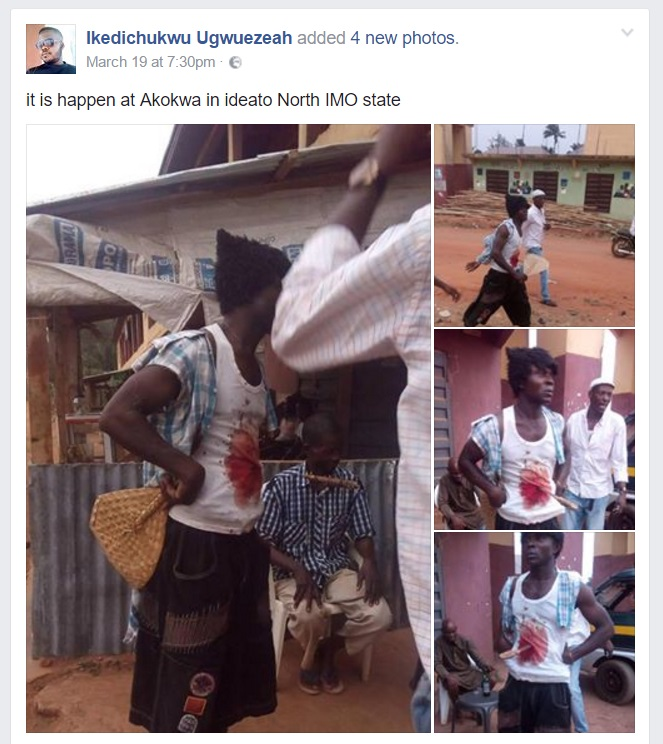 Photos: Nigerian Man Stabs Himself With Cutlass