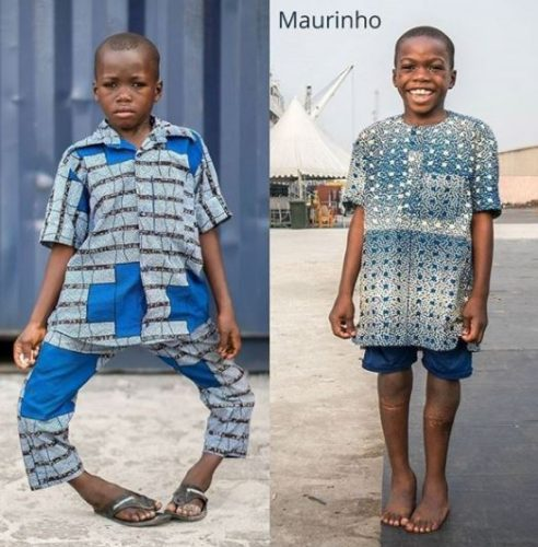 Before And After Photos: Young Boy With Bow Legs Undergoes Surgery