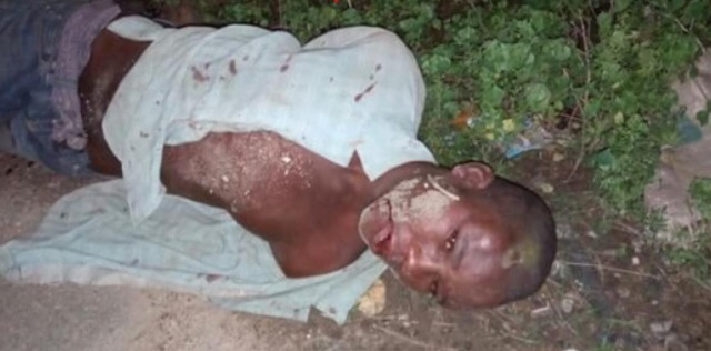 Photos: Young Nigerian Thief Receives The Beaten Of His Life After Been Caught In The Act