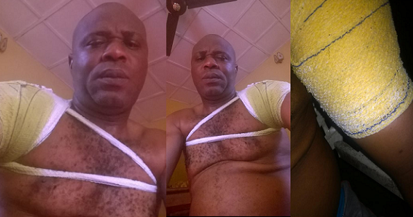 Nigerian Dad Cries Out After His Son Mercilessly Beat Him Up For Not Giving Him More Money
